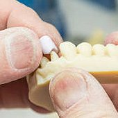 Denture Repair Bronx NYC