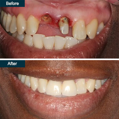 Before After Dental Implants Dentist Bronx NY