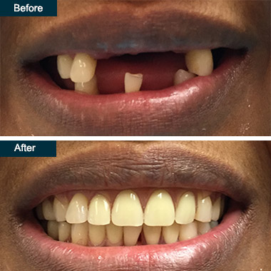 Before After Flexible Partial Dentures Dentist Bronx NYC
