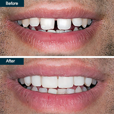Before After Cosmetic Dental Bonding (2) Bronx NYC