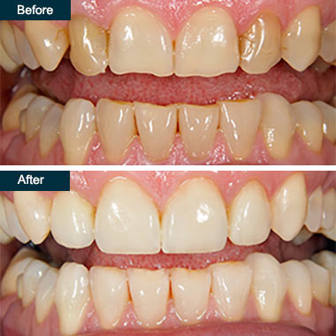 Before After Cosmetic Dental Bonding (1) Bronx NYC