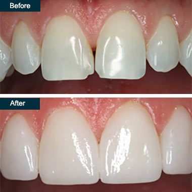 Before After Cosmetic Dental Bonding Bronx NYC