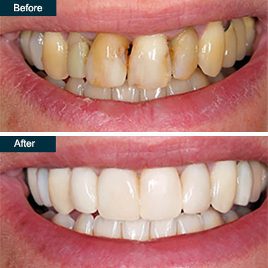 Before After Teeth Whitening Bronx NY