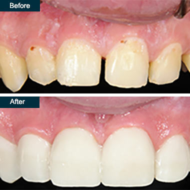 Before After Dental Smile Makeover Bronx NYC