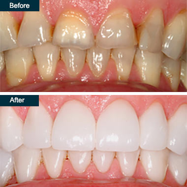 Before After Porcelain Dental Crowns Bronx NYC