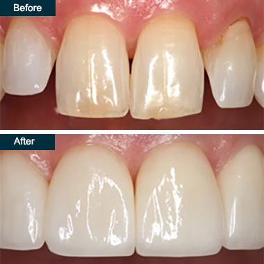 Before After Press On Dental Veneers (2) Bronx NYC
