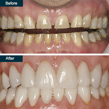 Before After Press On Dental Veneers Bronx NYC