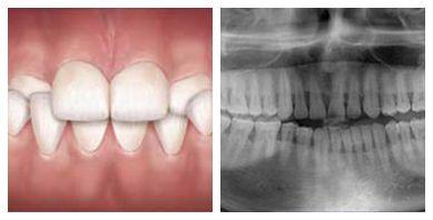Crossbite correction   Dentist in the Bronx