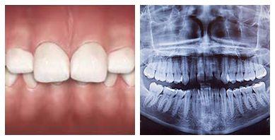Overbite correction   Dentist in the Bronx