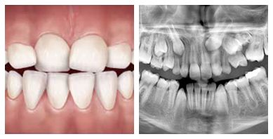 Overcrowded Teeth correction   Dentist in the Bronx