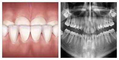 Underbite correction   Dentist in the Bronx
