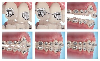 Dental Braces in Bronx NY