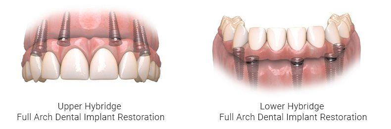 Full Arch Dental Implant Restoration