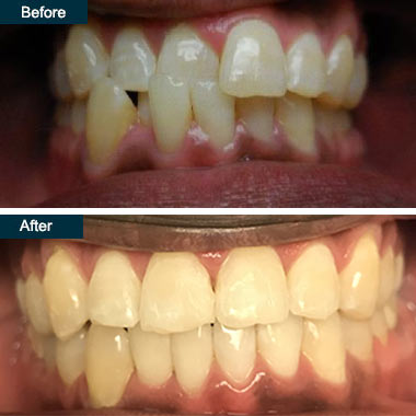 Invisalign-Bronx-Dentists-Before-Afterj