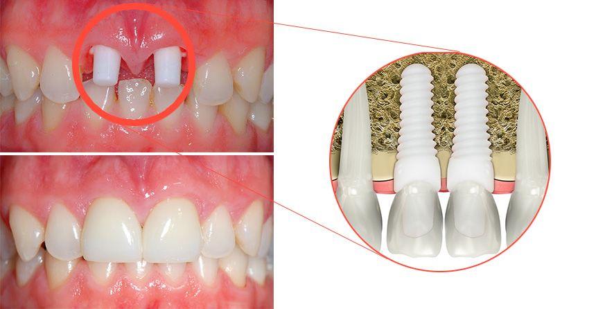 Circonia Dental Implants