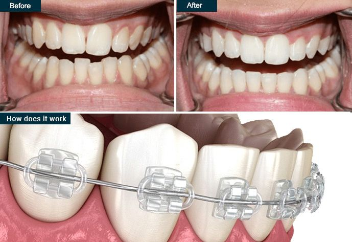 Six Month Smile | before & after